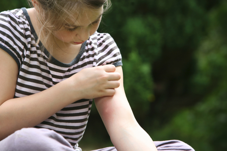 Top Tips to Help Comfort Your Child After Bug Bites and Itchiness